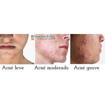 En Venta Productos Para Combatir El Acne